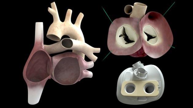 Video, Fotos: Primer trasplante de un corazón artificial