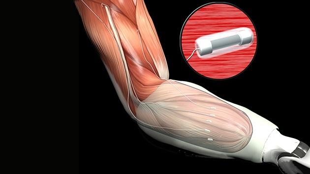 Videos: La Darpa desarrolla prótesis que devuelven la sensibilidad a los amputados