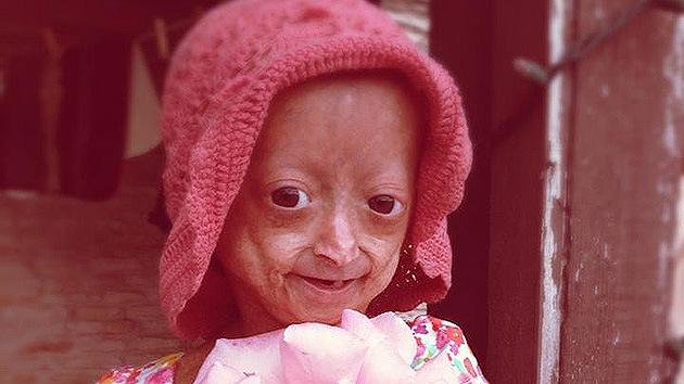 VIDEO: Una niña que sufre envejecimiento prematuro lanza una emotiva campaña