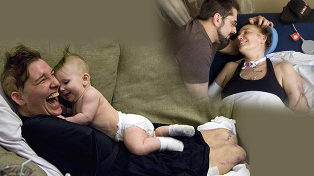 Doble trasplante de brazos para la madre que sacrificó todas sus extremidades para dar a luz