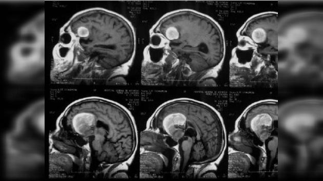 Desarrollan una nueva técnica para detectar aneurismas cerebrales