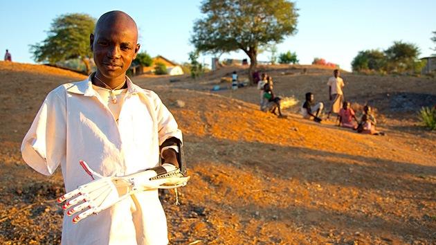 Crean prótesis de bajo costo imprimidas en 3D para víctimas de la guerra de Sudán