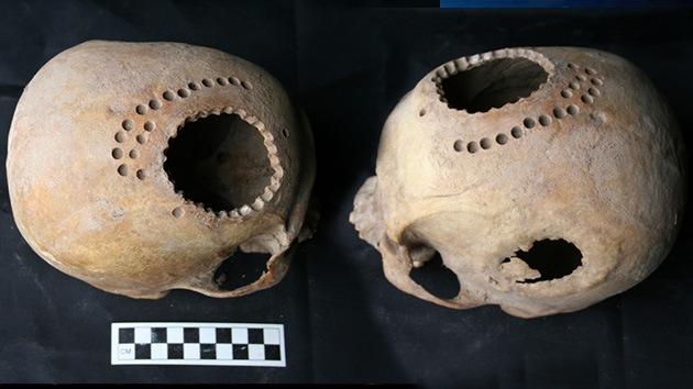 Fotos: en el antiguo Perú hacían trepanaciones craneales incluso para curar 'corazones rotos'
