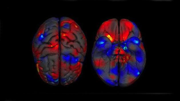 Confirman que el cerebro de los hombres es mayor que el de las mujeres