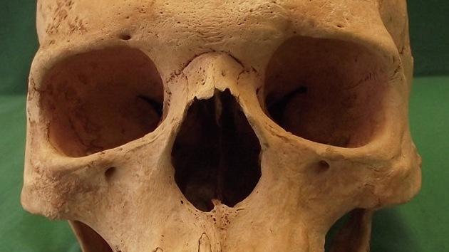 'Resucitan' a la lepra medieval y descubren por qué acabó la epidemia en Europa