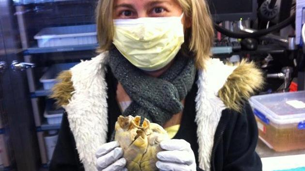 La foto de una mujer trasplantada 'con el corazón en la mano' conmueve la Red