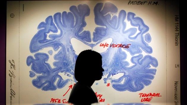 El cerebro tiene truco: Las 7 formas que tiene de engañar a nuestros cinco sentidos