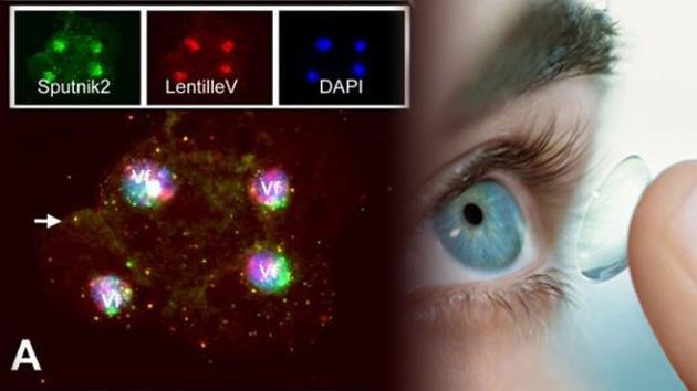 Descubren un gigantesco virus con triple parasitismo en un líquido para lentes