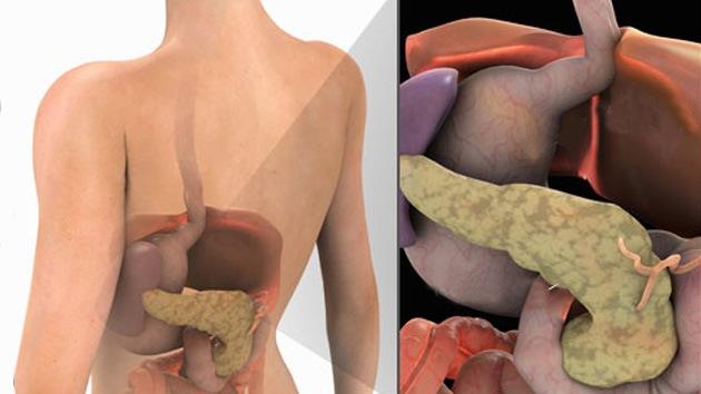 ¿Por qué algunas personas nacen sin páncreas?