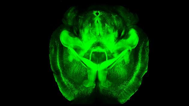 La ciencia nos ve las ideas: crean un método que vuelve transparente el cerebro