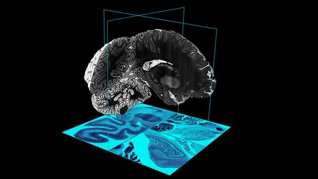 Video: Un ambicioso mapa 3D descubre el cerebro humano en toda su dimensión