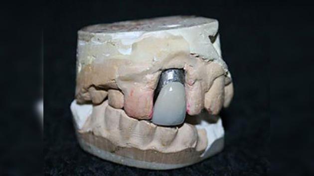 Elvis abre la boca: sale a subasta un molde de su mandíbula