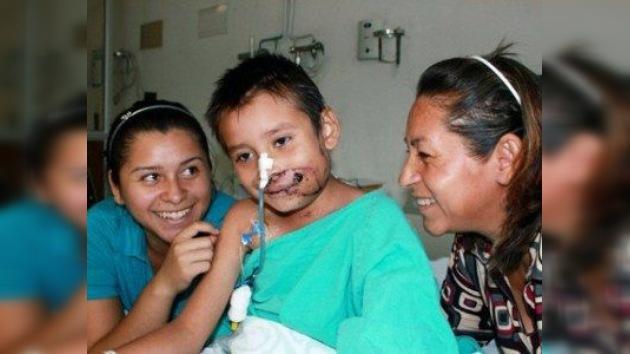 Médicos mexicanos le devuelven el rostro a un niño de siete años