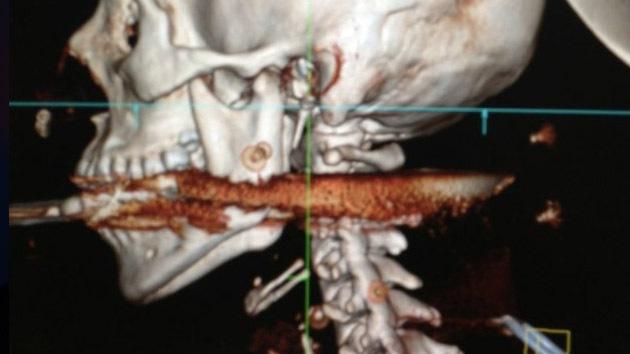 Una mujer sobrevive tras un disparo de arpón en el cuello