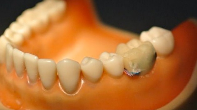Crean un chip dental que recolecta información sobre la salud de la persona