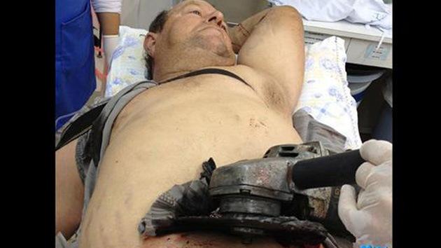 Médicos brasileños retiran una sierra circular del abdomen de un agricultor