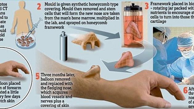 'Cultivan' una nariz en el brazo de un paciente para luego implantársela en la cara