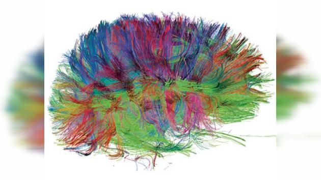 El Alzheimer ahora se puede detectar a través de un escáner cerebral