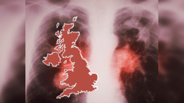 Londres, capital europea de la tuberculosis
