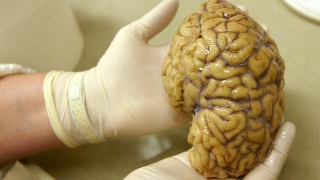 """Neurólogo: """"DARPA estudia implantar chips con memoria en el cerebro"""""""