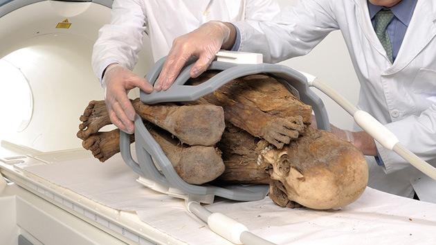 Las momias demuestran que la aterosclerosis se debe a la edad, no a las hamburguesas