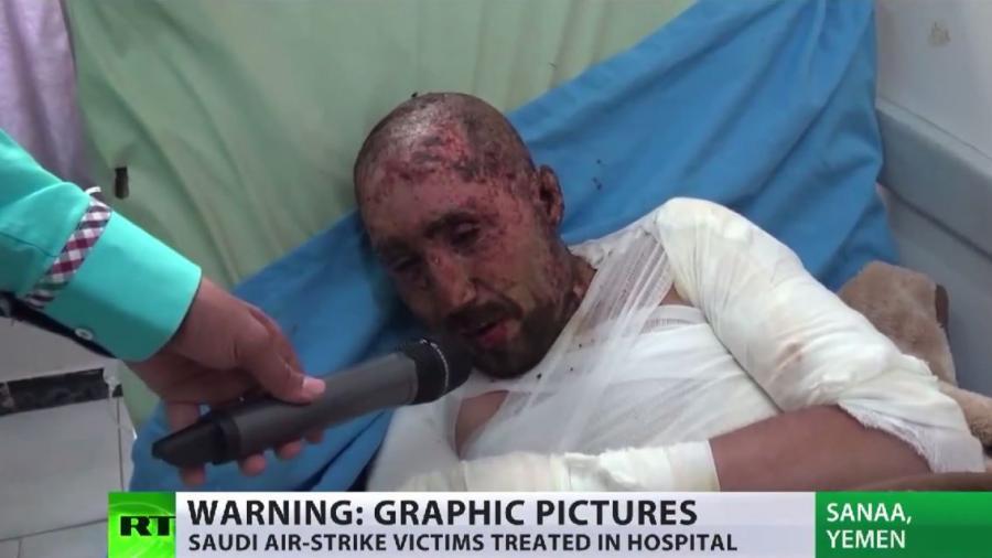 Jemen: Saudi Arabien bombardiert Zivilbevölkerung - Humanitäre Katastrophe