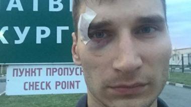 Der Journalist Pavel Kanygin nach seiner Festnahme in Donezk. Quelle: Facebook