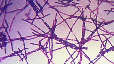 Von der US-Armee in Deutschland eingesetzt: Anthrax-Erreger unter dem Mikroskop