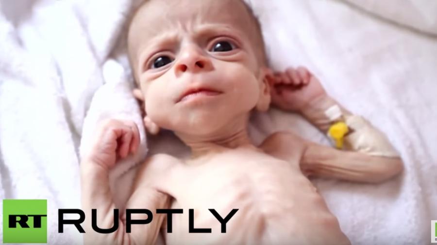 Militärintervention von Saudi Arabien im Jemen bedroht das Leben von 10 Millionen Kindern