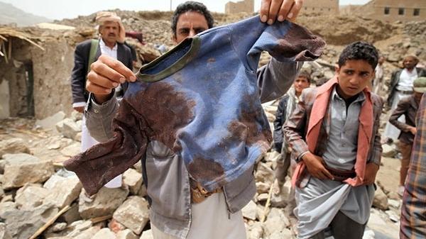 """Unicef: Über 500 tote Kinder seit Saudi-Bombardierungen im Jemen – Amnesty spricht von """"Kriegsverbrechen"""""""