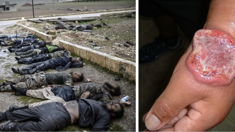 Tödliche Spur des IS: Fleischfressende Krankheit breitet sich in Syrien aus