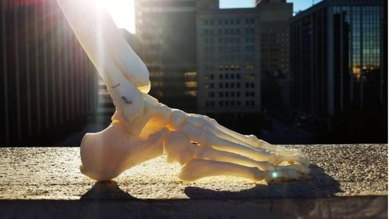 Junge US-Amerikanerin erstellt Instagram-Profil für ihr amputiertes Bein
