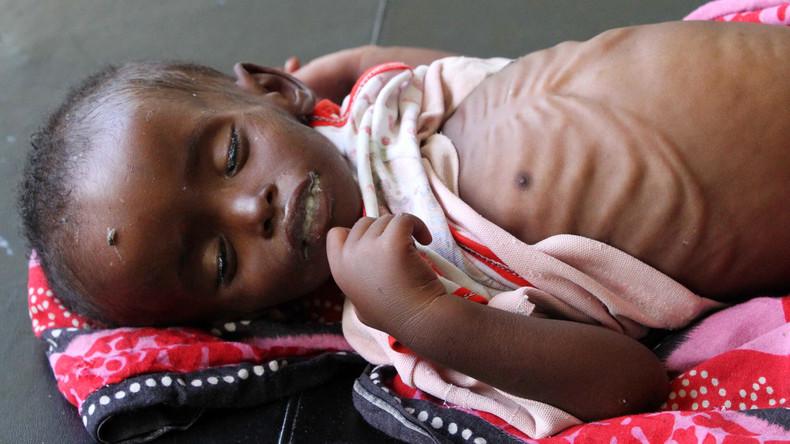 Über 100 Somalier sterben an Unterernährung innerhalb von zwei Tagen