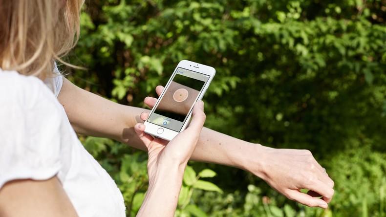 Mobile App zur Erkennung von Hautkrebs im Frühstadium entwickelt