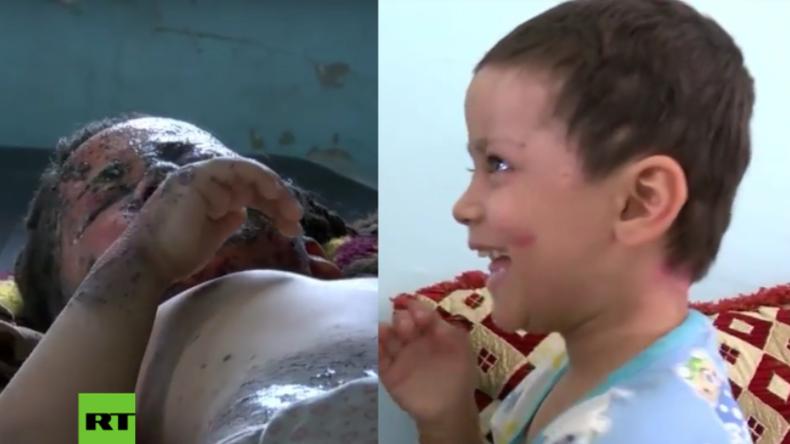 Irak: Ein Luftangriff riss ihre halbe Familie in den Tod - So geht es der kleinen Hawraa heute