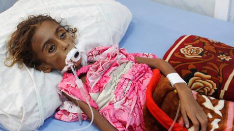 Die siebenjährige Jamila Ali Abdu in einem Krankenhaus in Hudaida - sie starb vor Tagen an den Folgen ihrer Unterernährung.