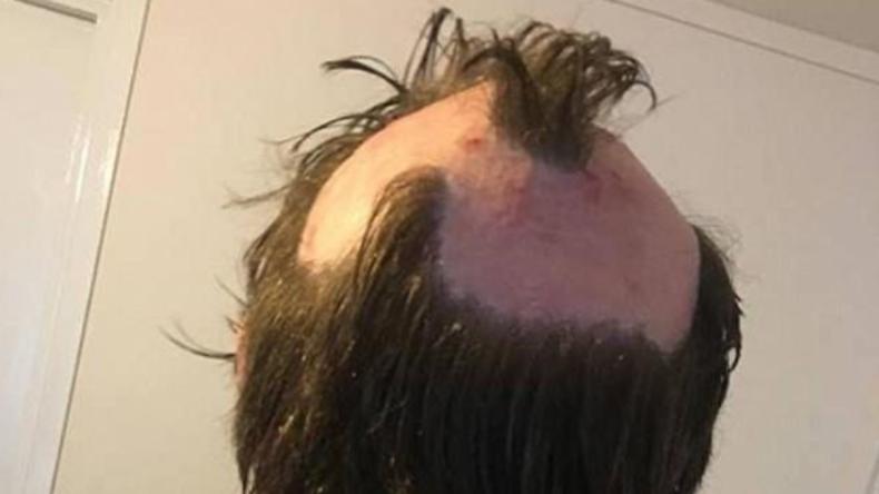 """Wer schön sein will, muss leiden: Britin wollte trendiges """"Einhorn-Haar"""" und hat nun Glatze"""