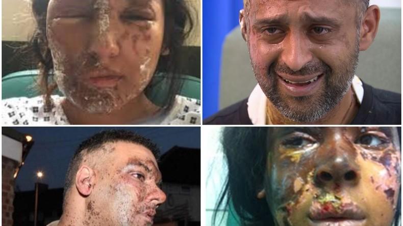 """""""Gesichtsschmelzer"""": Zahl krimineller Säure-Angriffe in London explodiert und steigt um 70 Prozent"""