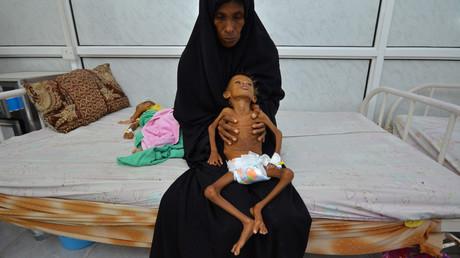Die 6-jährige Salem Abdullah Musabih mit ihrer Mutter in der jemenitischen Hafenstadt Hodaida