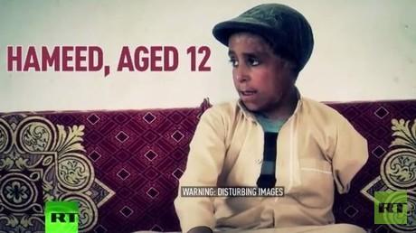 12-jähriger Jemenit erlebt 23 Operationen und verliert Arm im Kampf gegen Cholera [VIDEO]