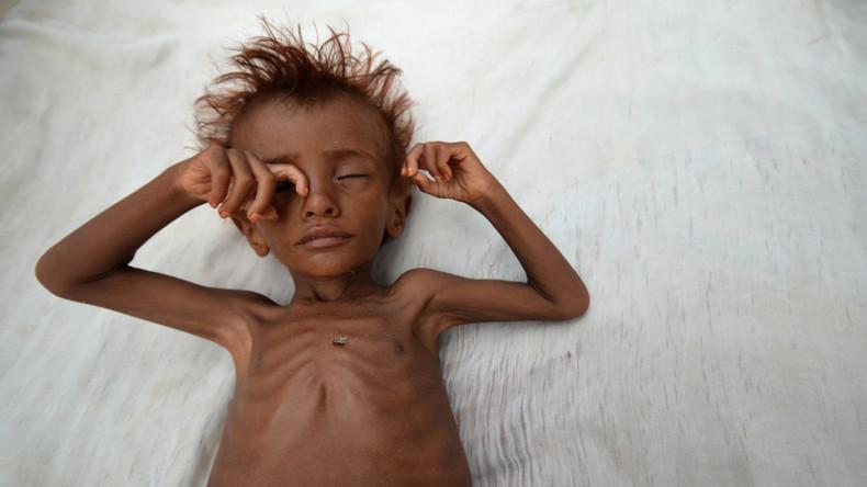 Jemen: Über 50.000 Kinder werden bis Ende des Jahres an Folge der Saudi-Intervention sterben