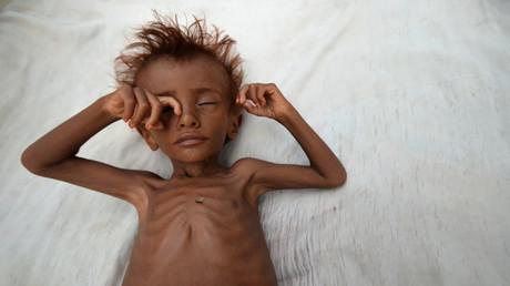 Unterernährtes jemenitische Kind, August 2017