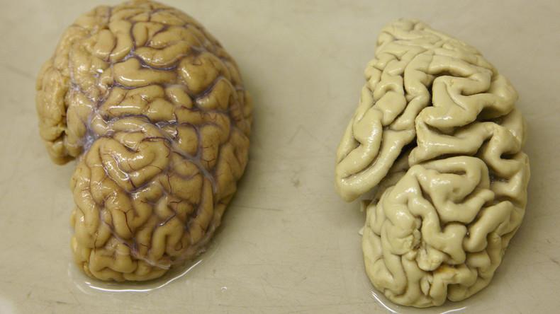 Wissenschaft: Ist Alzheimer doch ansteckend? Wettbewerb zur Ursachenforschung ausgeschrieben