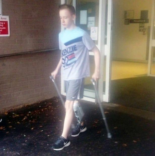 Ärzte nähen 15-Jährigem amputierten Fuß als Ersatz des von Krebs betroffenen Knies an