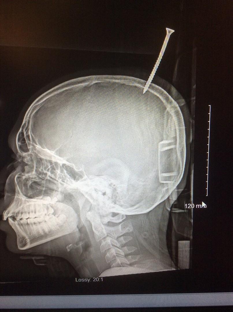 Junge überlebt 15 Zentimeter lange Schraube im Kopf [FOTOS]
