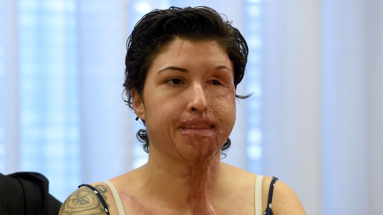 Säure-Opfer bekommt Briefe von Täter aus Gefängnis