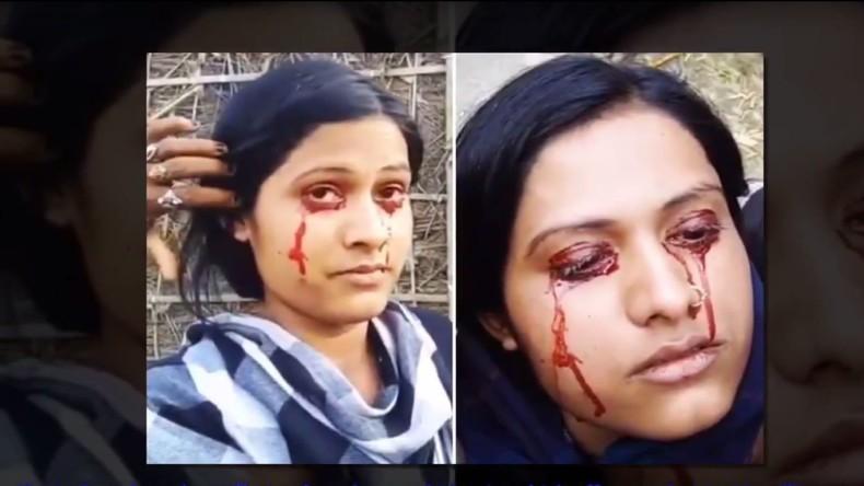 Inderin vergießt Bluttränen – Ehemann hält sie für Hexe und verlässt sie