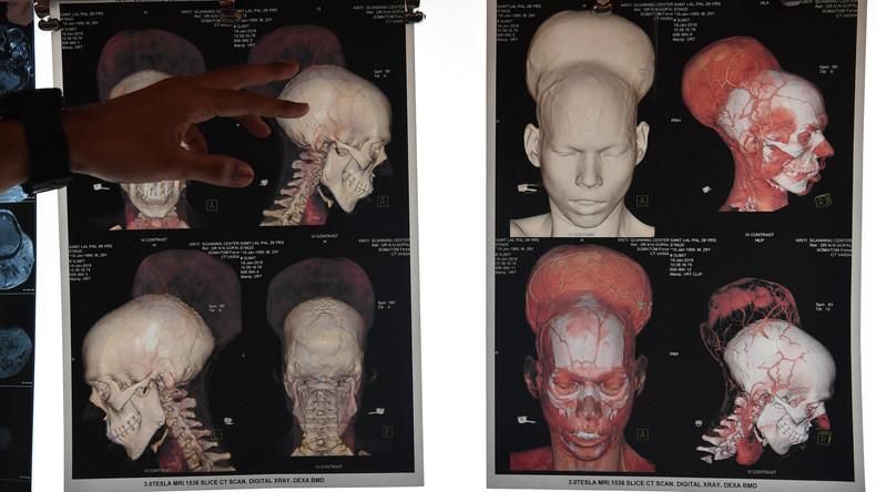 """""""Größer als der eigene Kopf"""": Ärzte in Indien entfernen wohl größten Hirntumor der Welt"""