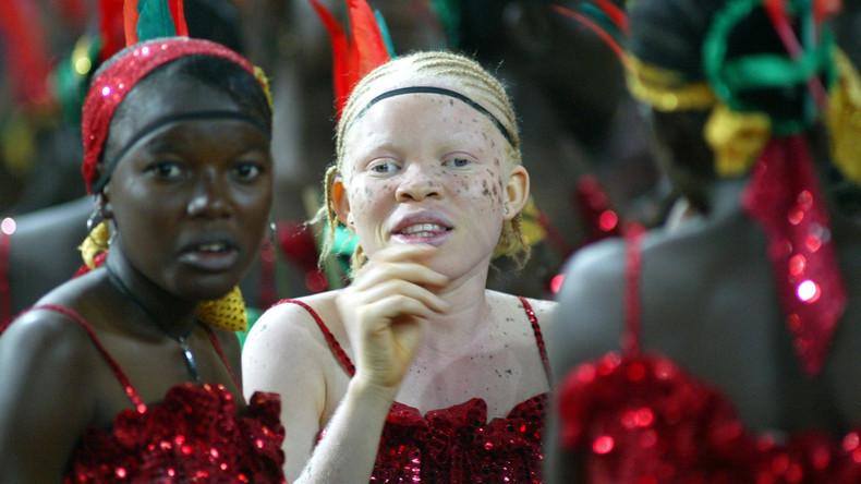 """Simbabwe kürt erste """"Miss Albino"""" - 85 Dollar als Preisgeld"""