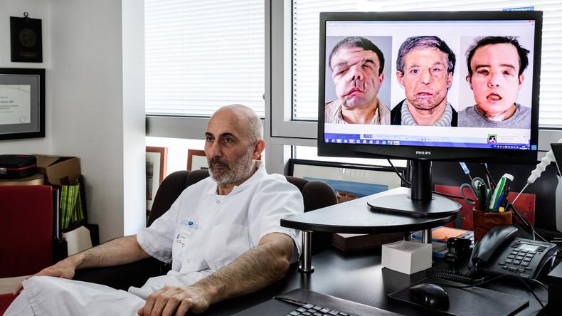 Mann mit drei Gesichtern: Franzose übersteht erfolgreich zweite Gesichtstransplantation